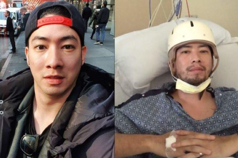 """""""No tiene hueso del lado derecho del cráneo"""": Esposa de Maisong Lee, lo muestra en fotos hospitalizado a quienes le pidieron """"pruebas"""""""